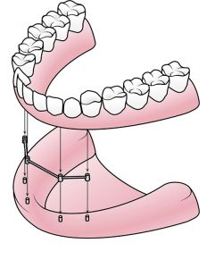 Dentures In Madison In Madison Dental Health Partners